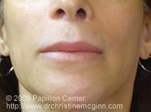 V-Y Lip Augmentation Pre-Op