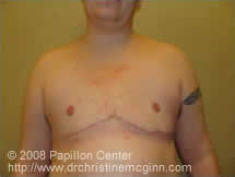 Mastectomy Post-Op